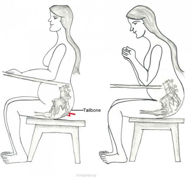 При ходьбе болит промежность при беременности