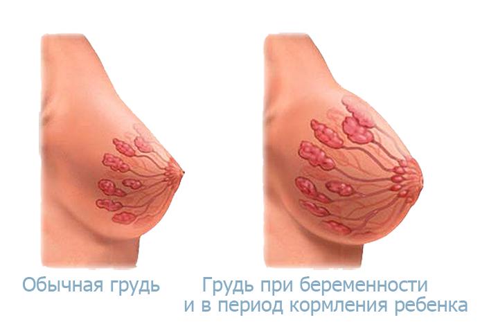 Виды сосочков груди картинки